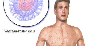Chickenpox-wiki