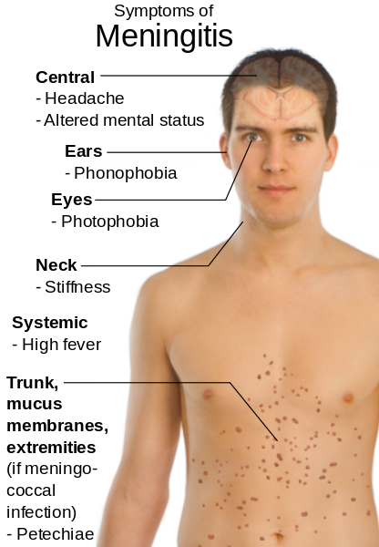 Hib Haemophilus Influenza Type B Vaccine Guide